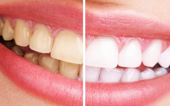 Blanqueamiento dental por 49 €