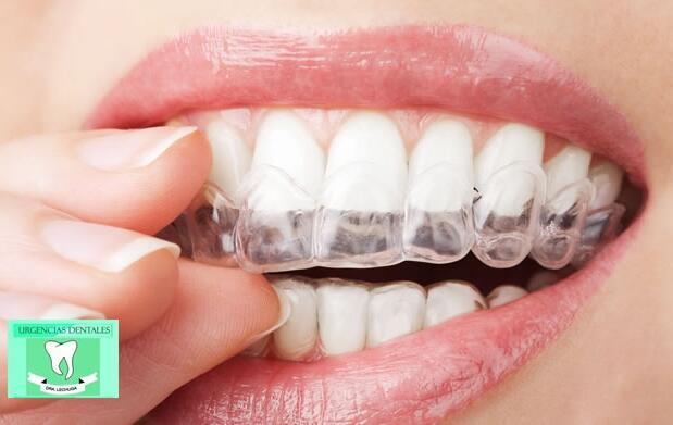 Férula dental y limpieza