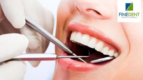 Limpieza dental + revisión con opción a empaste y radiografía