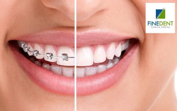 Limpieza dental + Revisión + Radiografía