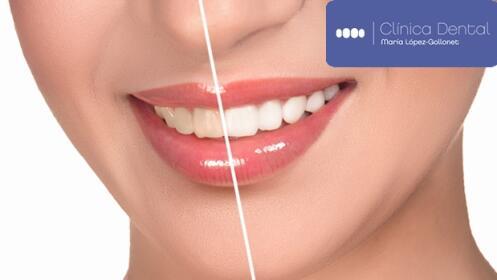 Limpieza dental + Blanqueamiento con LED Azul