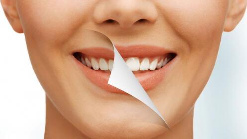 Blanqueamiento dental + limpieza + revisión