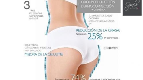 Criolipólisis: reduce talla de forma permanente