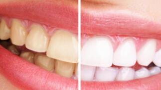 Blanqueamiento LED + limpieza dental en el centro (valido hasta 14/06/21)