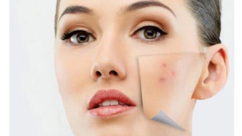 1 o 3 sesiones de fotoacné: elimina el acné