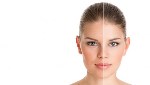 Tratamiento facial con peeling químico
