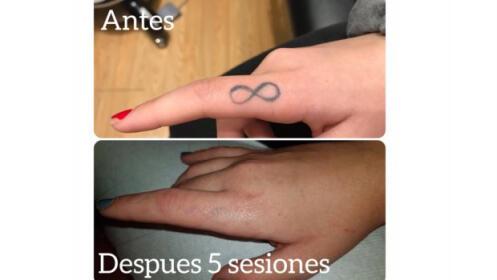 3 sesiones laser eliminación tatuajes y manchas
